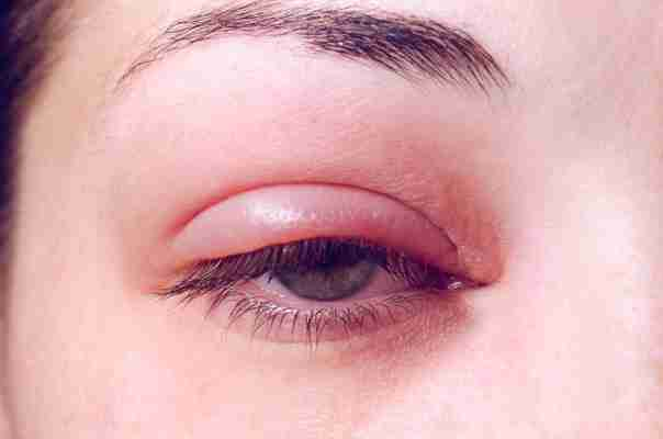 Czym jest jęczmień na oku