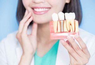 Implanty stomatologiczne – tu ważny jest czas!